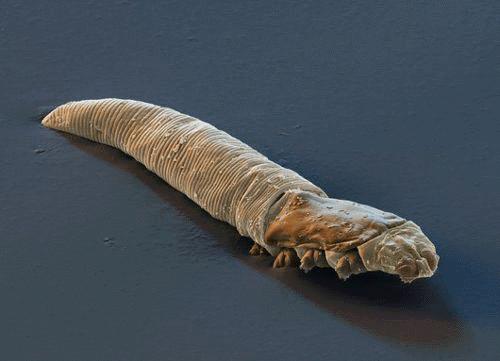 Eyelash worms